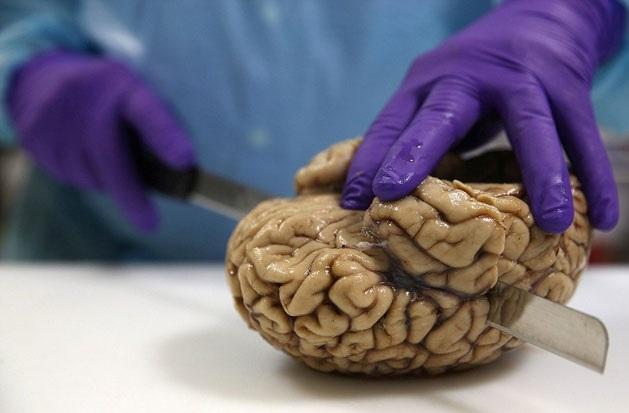 İngiltere'nin en büyük beyin bankası galerisi resim 1