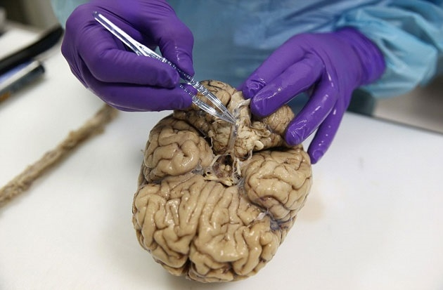 İngiltere'nin en büyük beyin bankası galerisi resim 3