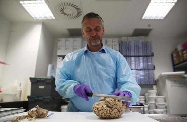 İngiltere'nin en büyük beyin bankası galerisi resim 5