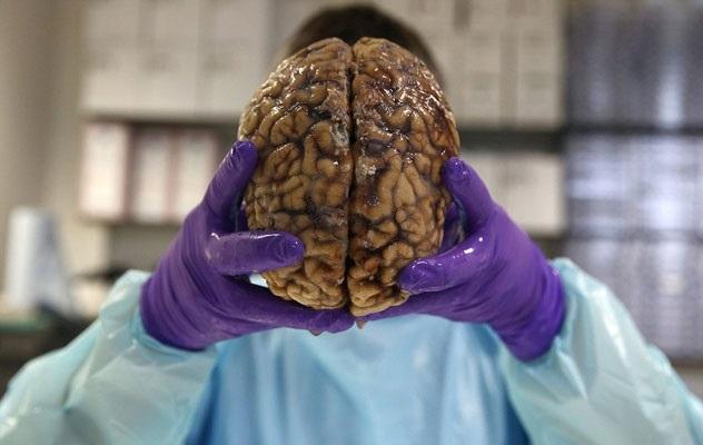 İngiltere'nin en büyük beyin bankası galerisi resim 6