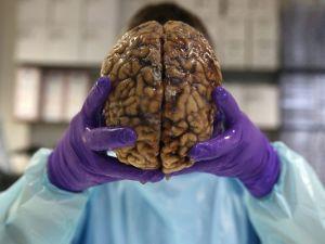 İngiltere'nin en büyük beyin bankası