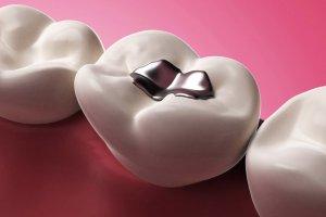 """""""Dişlerdeki cıvalı dolgu hastalıklara yol aaçıyor"""""""