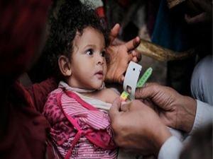Yemen'de 100 binden fazla kolera şüphelisi var