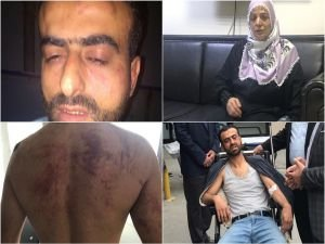Polis iftar vakti anneyi dövdü, oğluna da işkence etti!