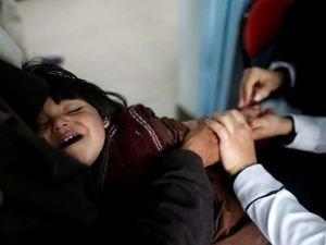 BM: Yemen'de kolera salgını kontrolden çıkıyor