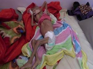 Yemen'de insanlık can çekişiyor