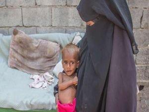 Yemenli çocuklar için ekmek yardımı çağrısı