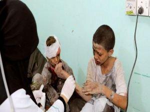 Yemen'de binlerce çocuk katledildi