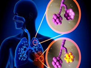 Grip Tehlikesinden korunmak?