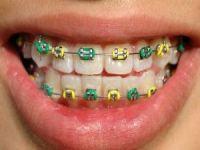 Çocuklarda diş eti tedavisi