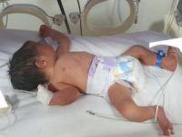 Özenli bakım, prematüre bebekleri hayata bağlıyor