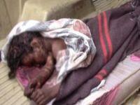 Suudi koalisyondan Yemen'e saldırı: 7 ölü 2 yaralı