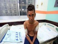 BM: Yemen'de haftada en az 123 sivil hayatını kaybediyor