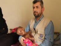 """""""Yemen tarihinin en kötü zamanını yaşıyor"""""""