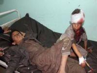 Suudi koalisyonu 27 çocuğu katletti