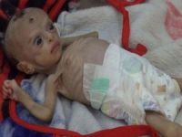 Yemen'de her 2 saatte bir anne ve 6 bebek ölüyor