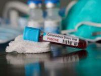 Fransa, Türkiye'den gelenlere Coronavirus testi yapmaya başladı